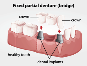 illustration showing how crowns and bridges work