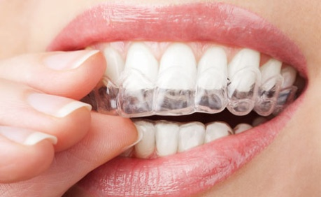 more subtle than traditional braces